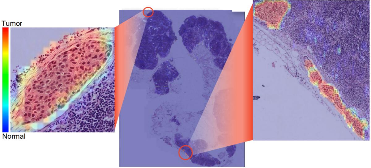 Tumor metastasis on Lymph Nodes